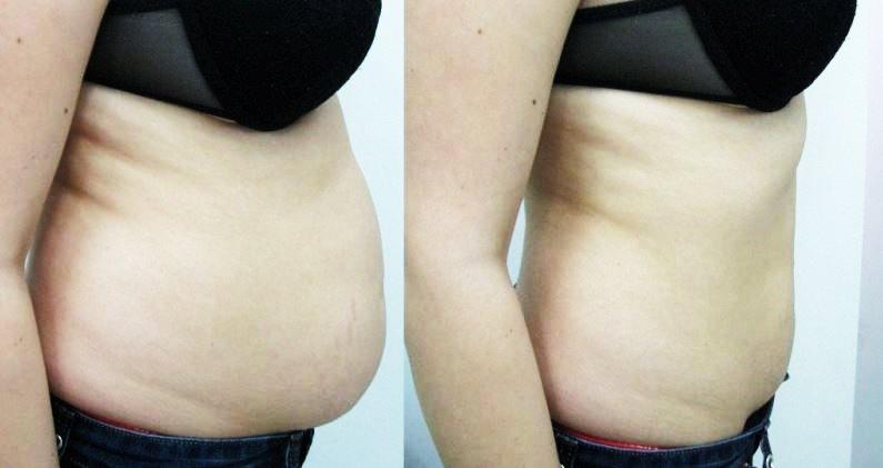 lipoaspiratie liposuctie indepartare grasime