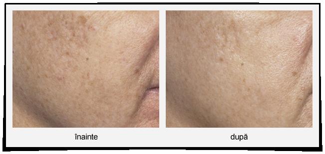 tratament laser cicatrici fata